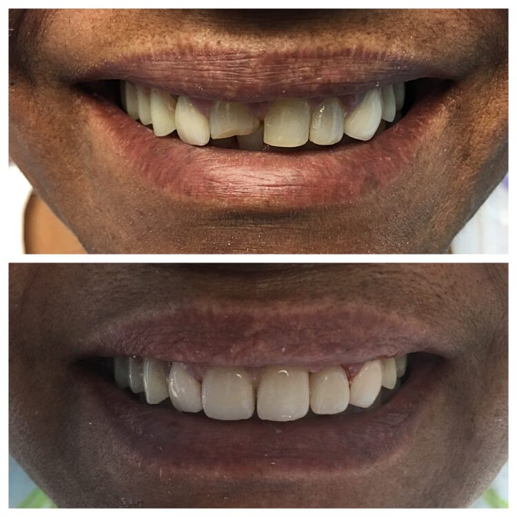 chipped tooth fixed by Dr. Daniel Cohen at South Florida Dental Center in Coral Springs Florida