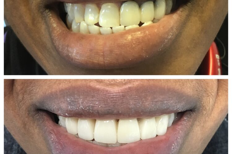 dental restoration by Dr. Daniel Cohen at the South Florida Dental Center in Coral Springs Florida
