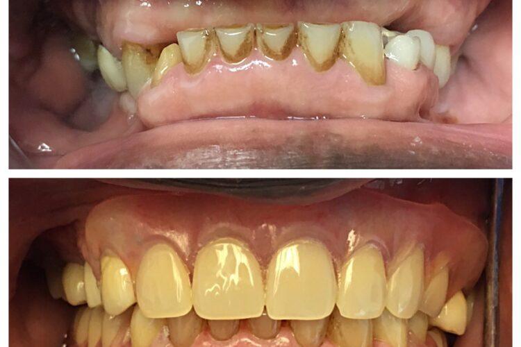 dental restoration from Dr. Daniel Cohen at South Florida Dental Center in Coral Springs Florida