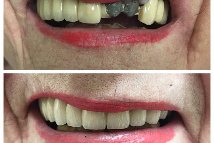 dental implants by Dr. Daniel Cohen at South Florida Dental Center in Coral Springs Florida