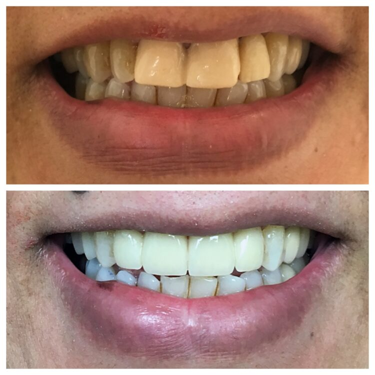 Teeth whitening by Dr. Daniel Cohen at South Florida Dental Center in Coral Springs Florida