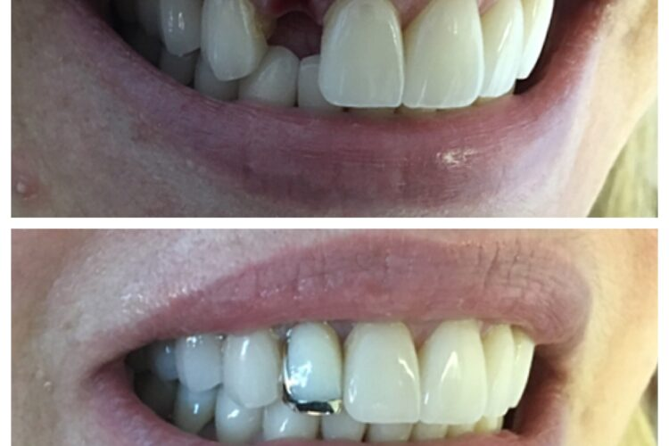 Fixed tooth by Dr. Cohen at South Florida Dental Center in Coral Springs Florida