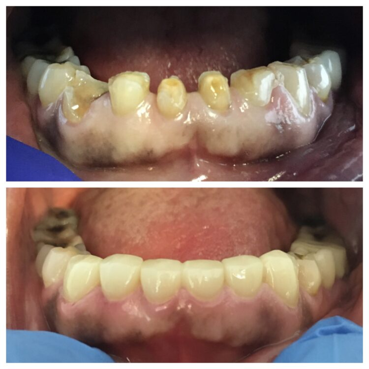 dental restoration from Dr. Cohen and South Florida Dental Center in Coral Springs Florida