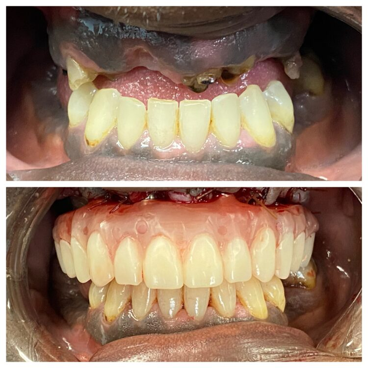 before and after dental implants for South Florida Dental Center in Coral Springs Florida