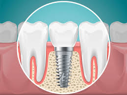 Graphic showing dental implants in for Dr. Cohen and the South Florida Dental Center in Coral Springs, FL