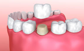 The process of adding dental crowns in Coral Springs, FL