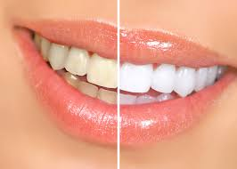 teeth whitening with Dr. Cohen and the South Florida Dental Center in Coral Springs, Florida
