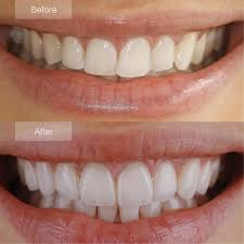 Teeth before and after cosmetic dental services in Coral Springs, FL