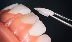 veneers at Dr. Daniel Cohen South Florida Dental Center in Coral Springs, Florida
