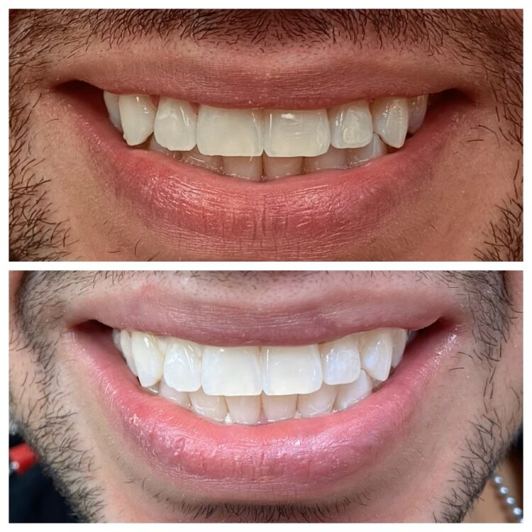 before and after whitening at South Florida Dental Center in Coral Springs Florida